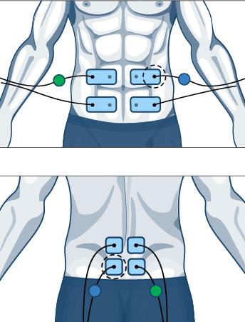 miejsce-na-elektrode-2-elektrostymulatory