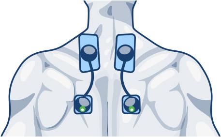 elektrostymulatory