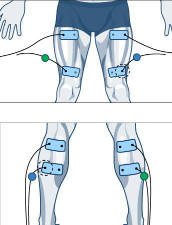 miejsce-na-elektrode-4-elektrostymulatory