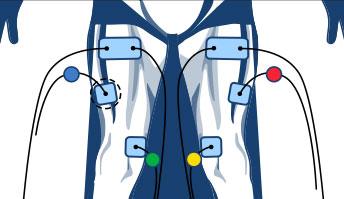 miejsce-na-elektrode-elektrostymulatory