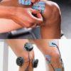 elektrostymulacja kolana bole kolana