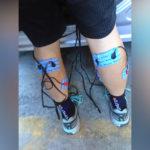 10-elektrostymulatory-łydka-ból-bracing