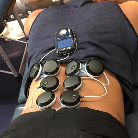 elektrostymulacja na ból pleców