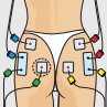 compex electrostimulation