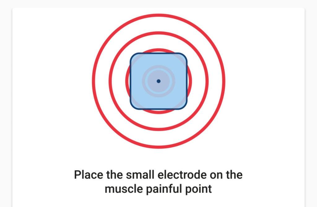 punkt ulozenia elektrod w programach przeciwbolowych tens