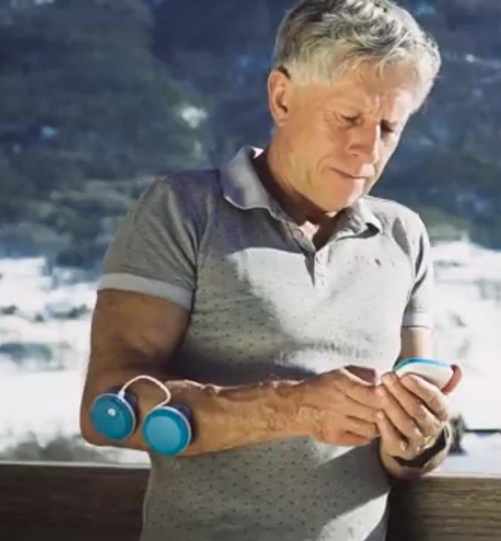 elektrostymulator mięśni w zastosowaniu usuwania bólu w przedramieniu u osoby w wieku emerytalnym
