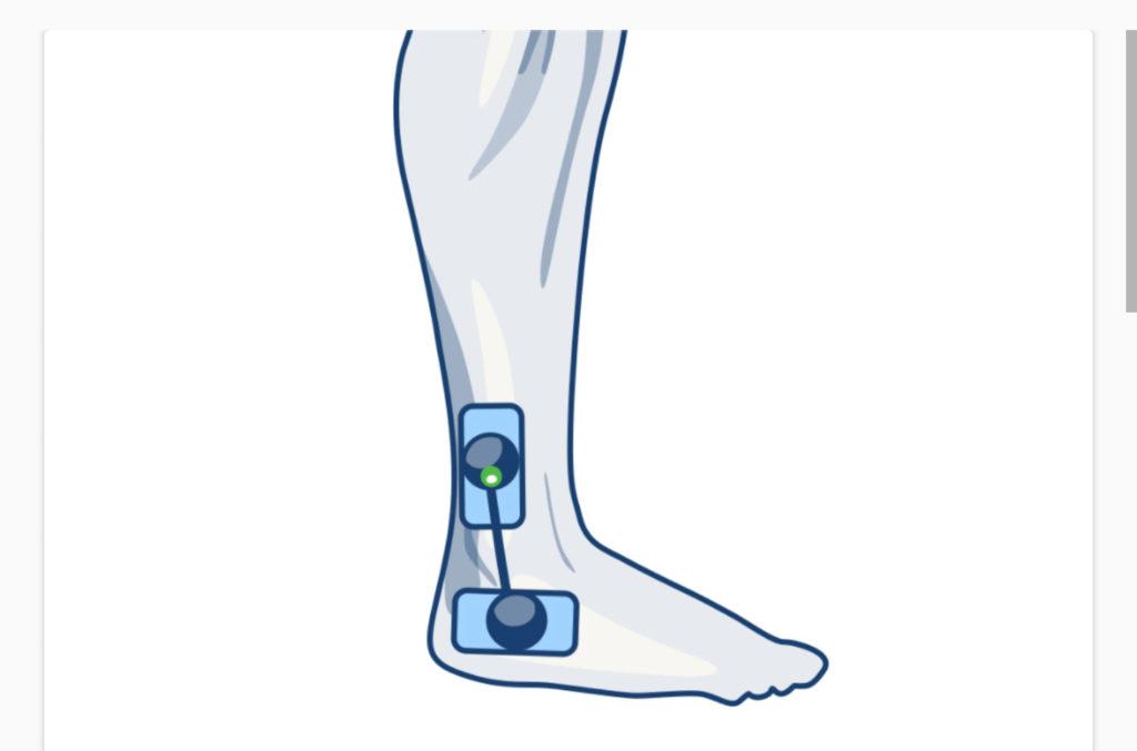 compex ulozenie elektrod na koste i staw skokowy