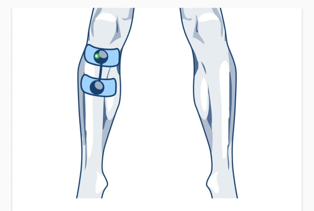 elektrody compex pomoc w kontuzjach kolana