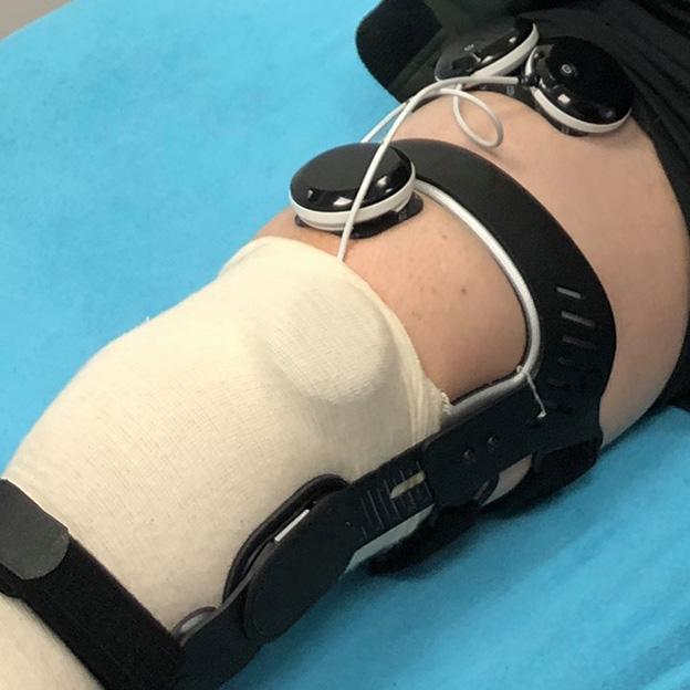 rehabilitacja kolana wypozyczalnia elektrostymulatorow - elektrostymulacja z orteza