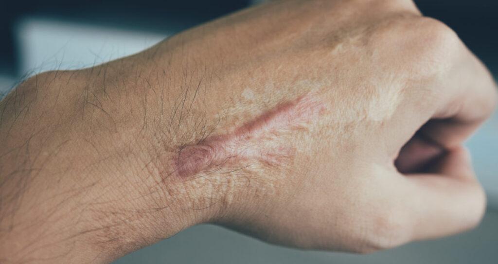 masażer Lyapko do leczenia blizn